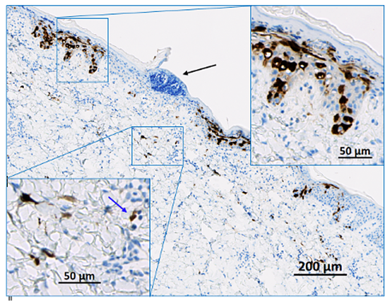 A pig skin injection site showing local expression of a reporter molecule, which is then detected with an anti-reporter molecule antibody