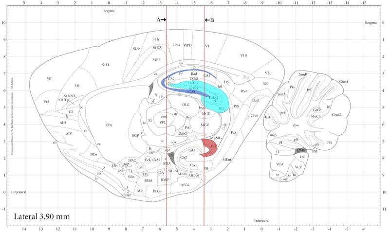Figure 1 sagittal brain section.jpg