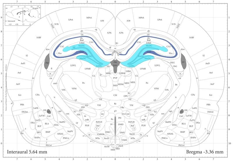 Figure 2 coronal brain section.jpg