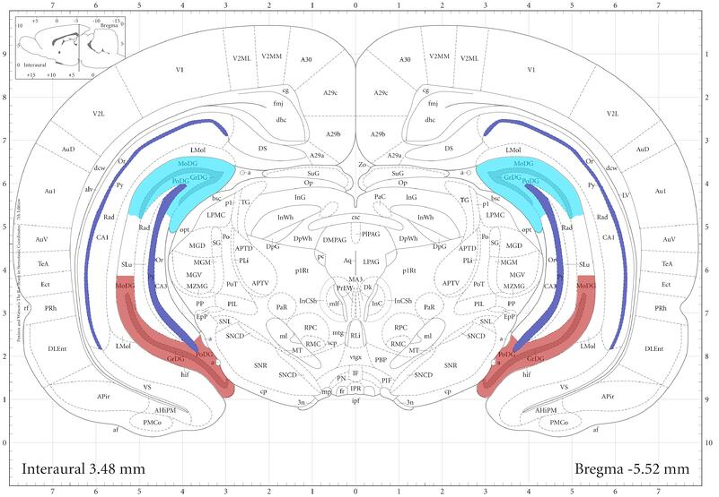 Figure 3 coronal brain section.jpg