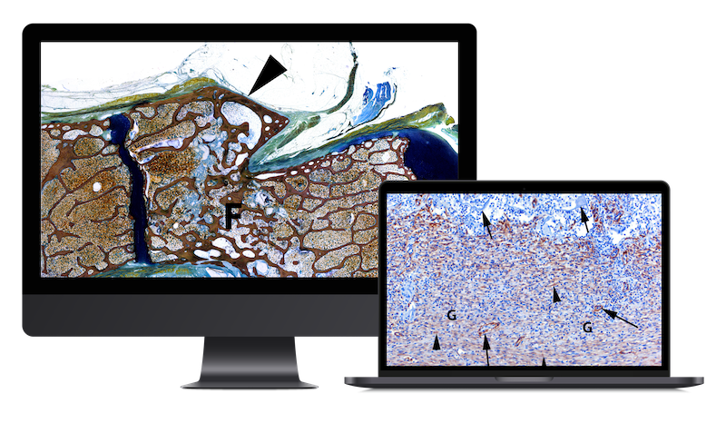 The evaluation of myofibroblasts underneath a microscope displayed on computer screen
